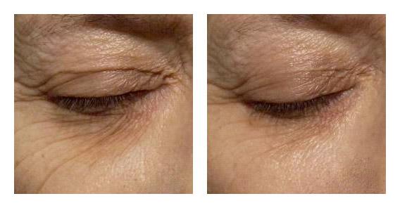 Rapid Wrinkle Repair® @neutrogena